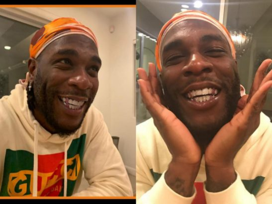 Burna Boy shows off his diamond teeth with different colors (Photos)