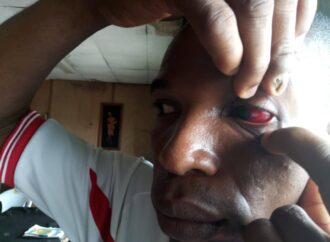 Police brutalise NUJ ex-staff over 'nose mask' in Edo