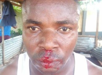 [UPDATED] Agency disowns staff brutalised by 'yahoo boys' in Benin